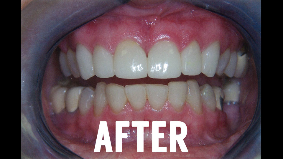 After Dental Crown Procedure
