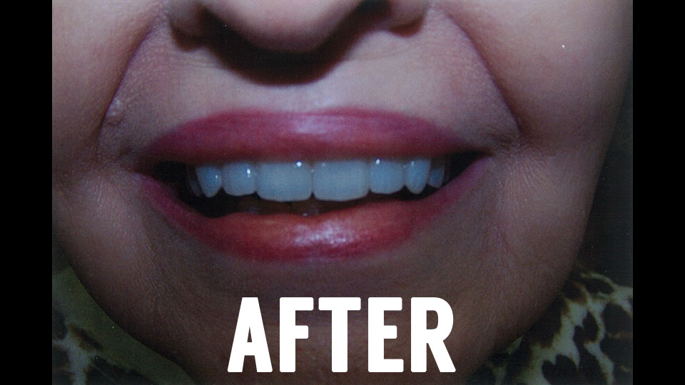 Dental Veneers After Picture