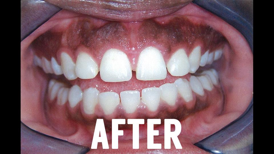 Dental Laser Surgery