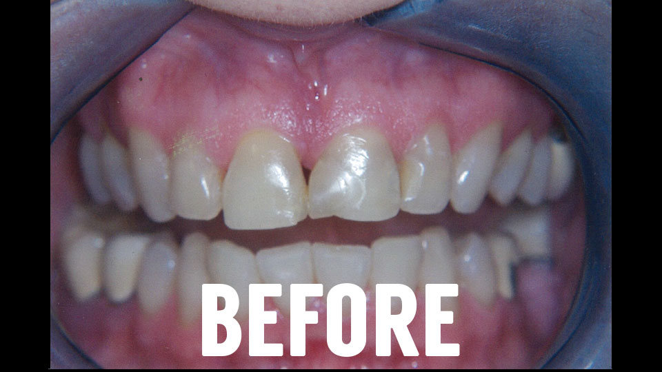 Before Dental Crown Procedure