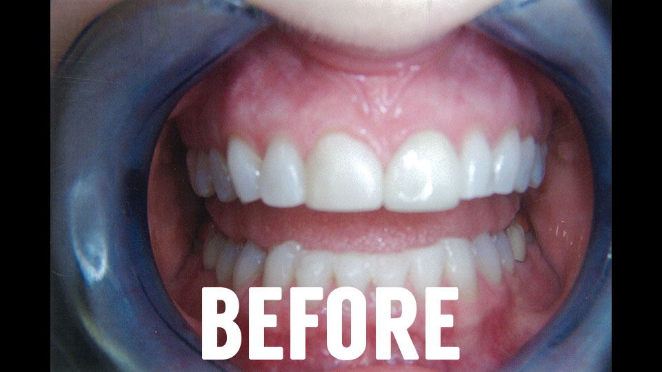 Before Dental Veneers