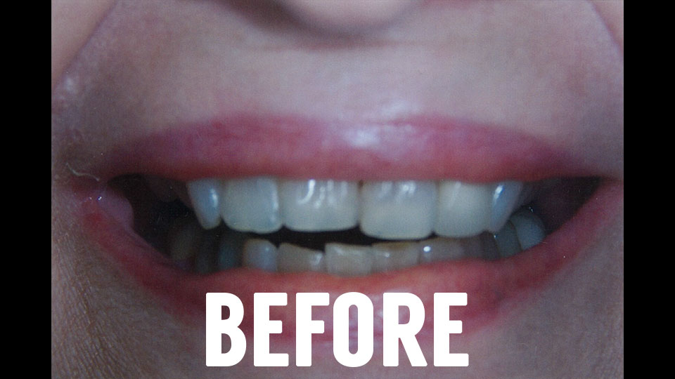 Dental Veneers Before Picture