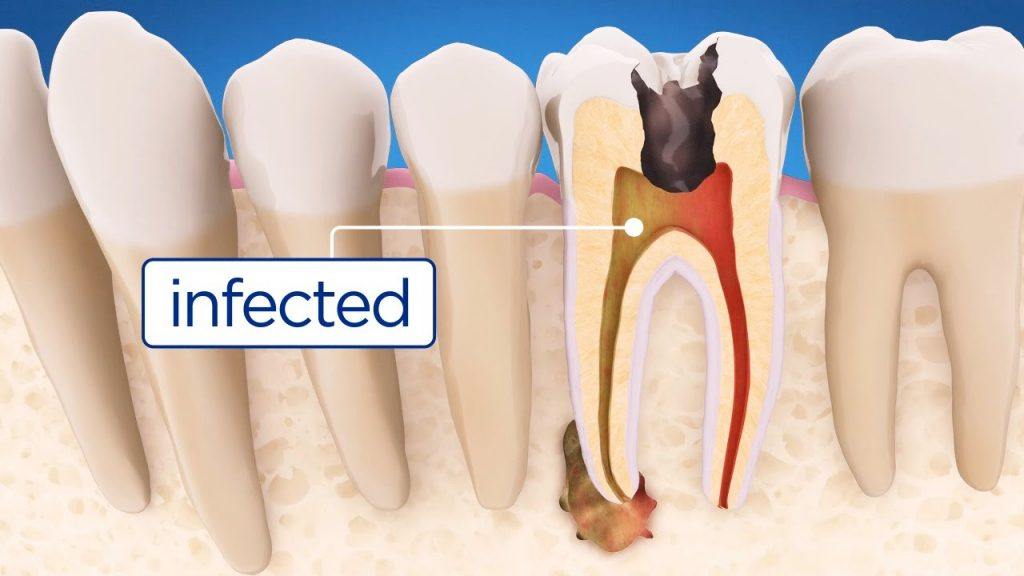 Symptoms of Root Canal