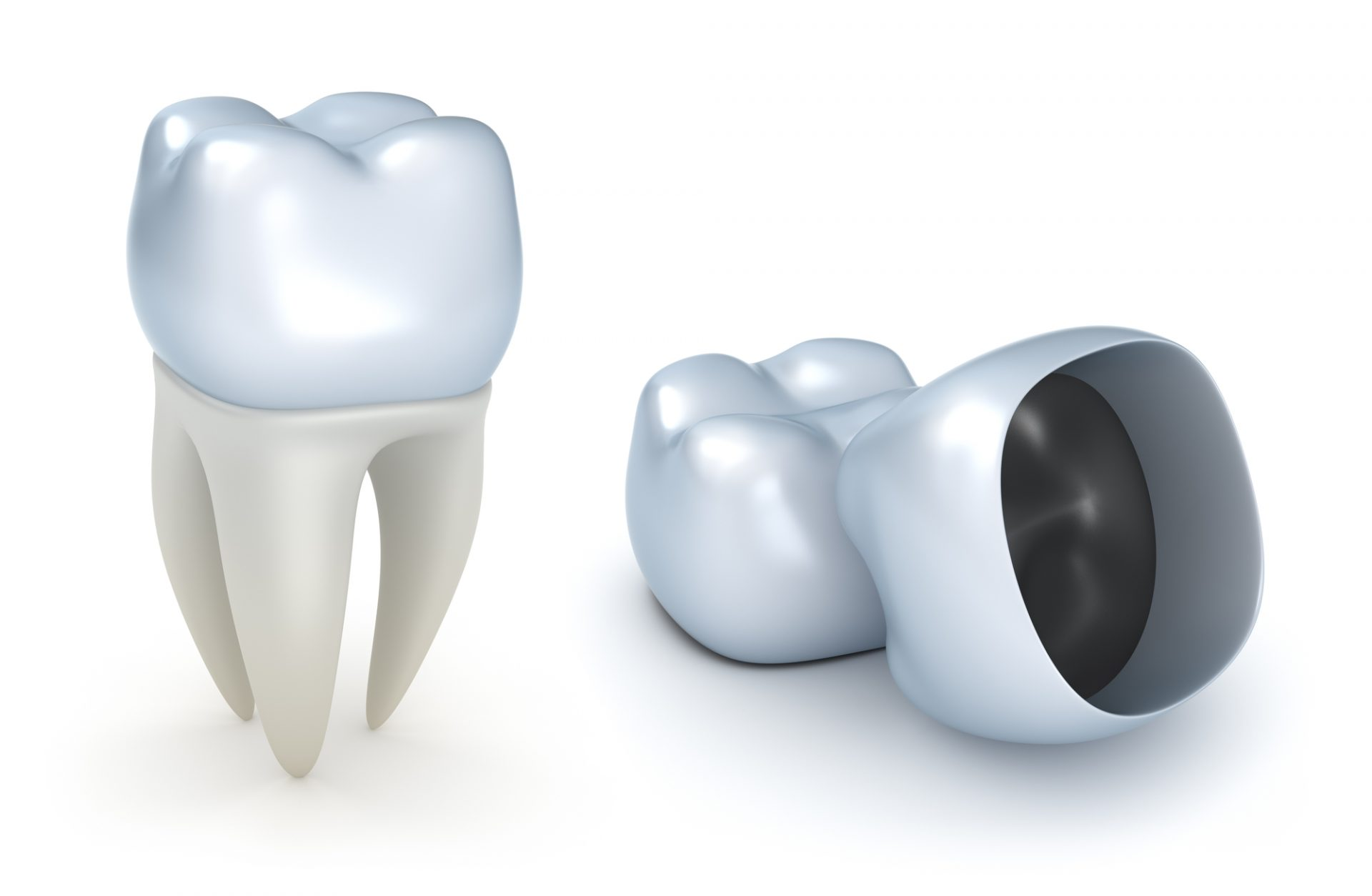 Dental Crowns Procedure Murfreesboro TN