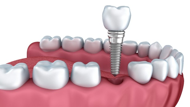 Restoration of Dental Implants