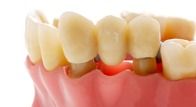 Pros and Cons of Dental Bridges