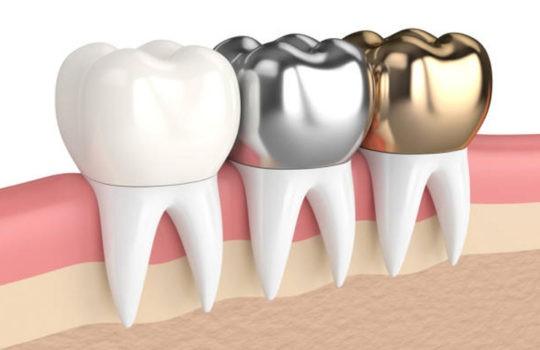 Types of Dental Crowns