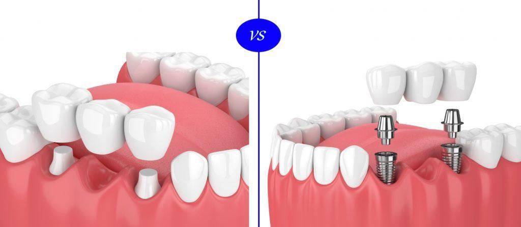 dental implant vs fixed bridge