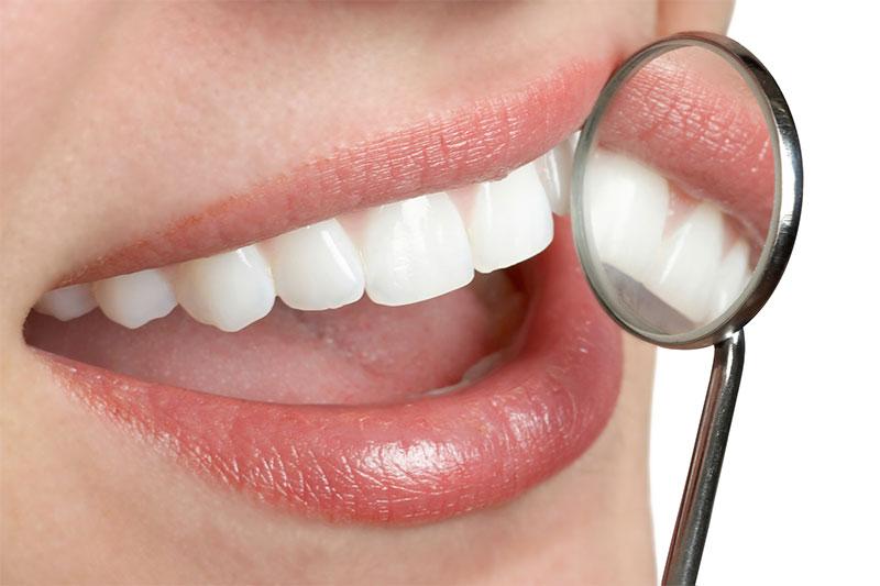 Dental Beautiful Smile