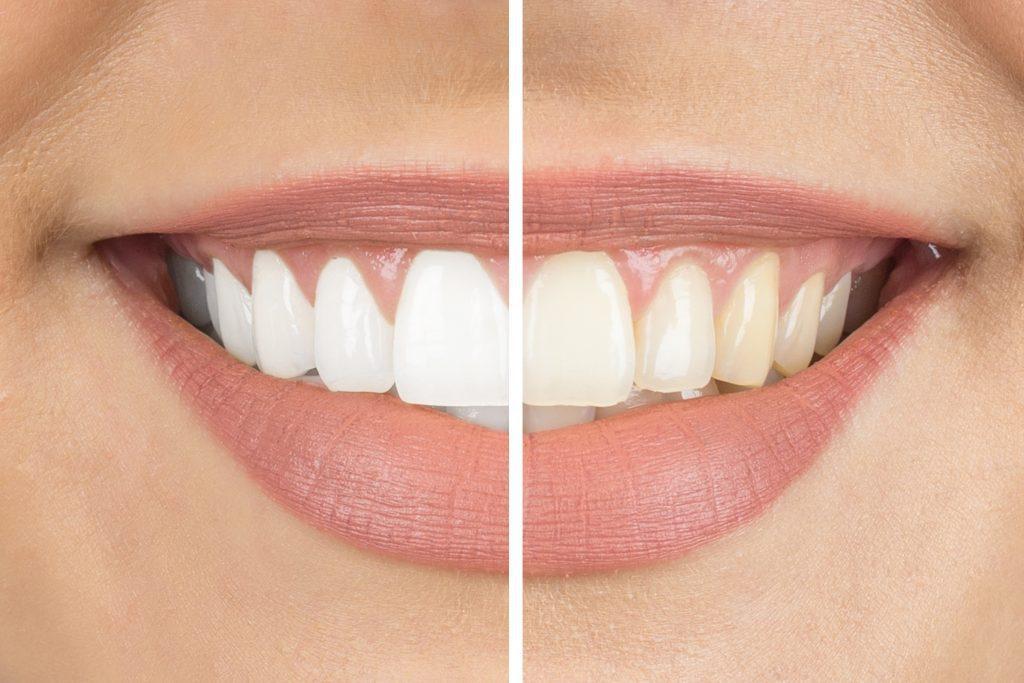 dental bonding for gaps