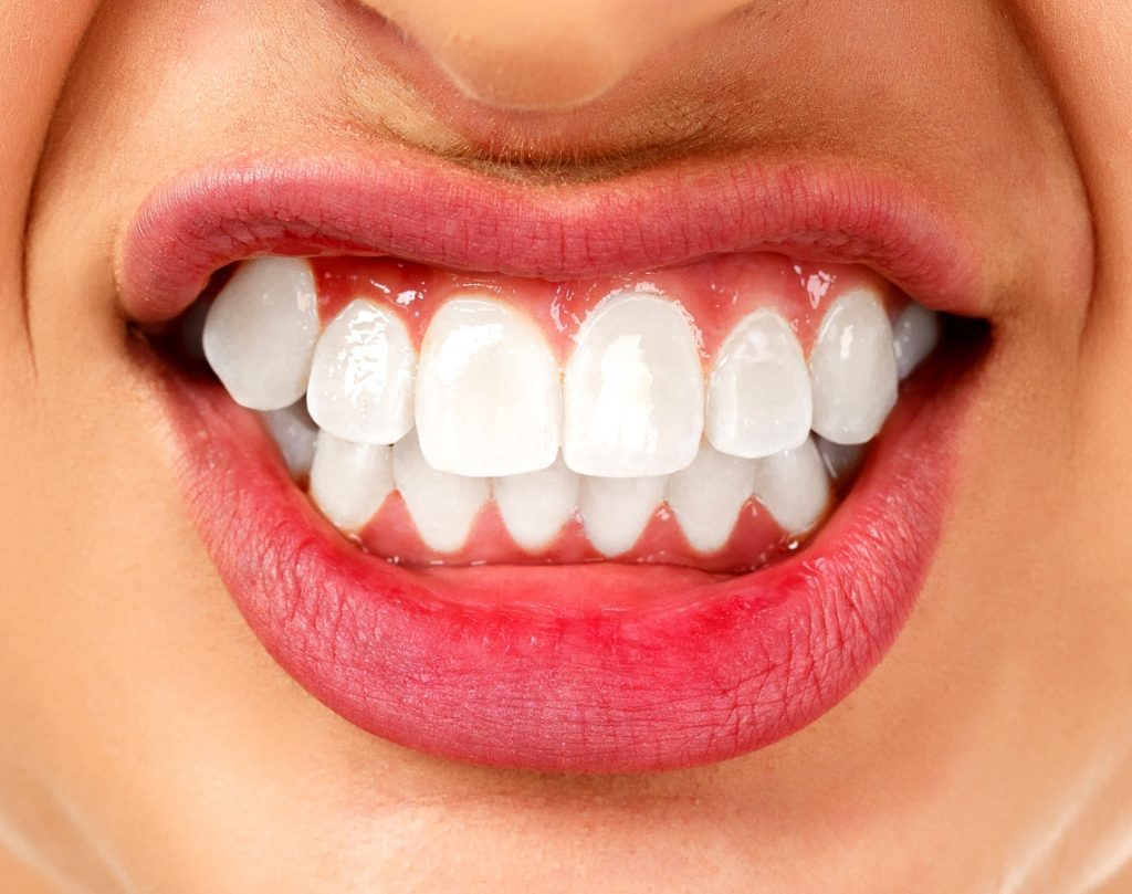Teeth Grinding Bruxism and Clenching
