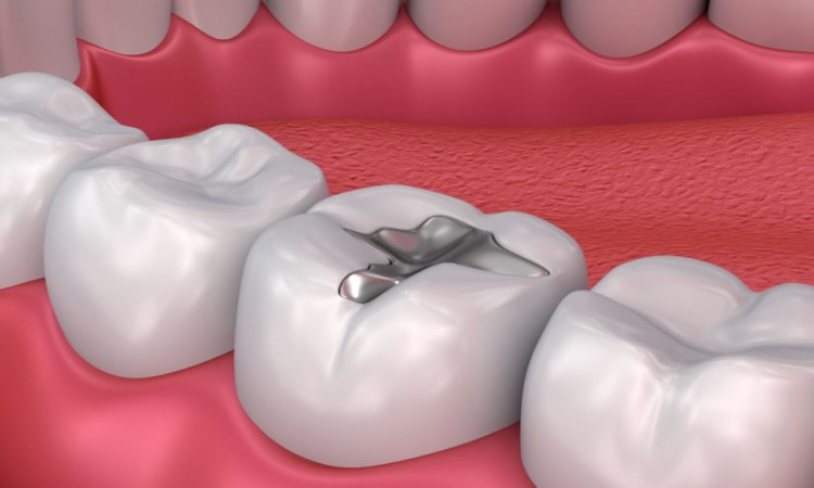 Dental Inlay vs. Filling
