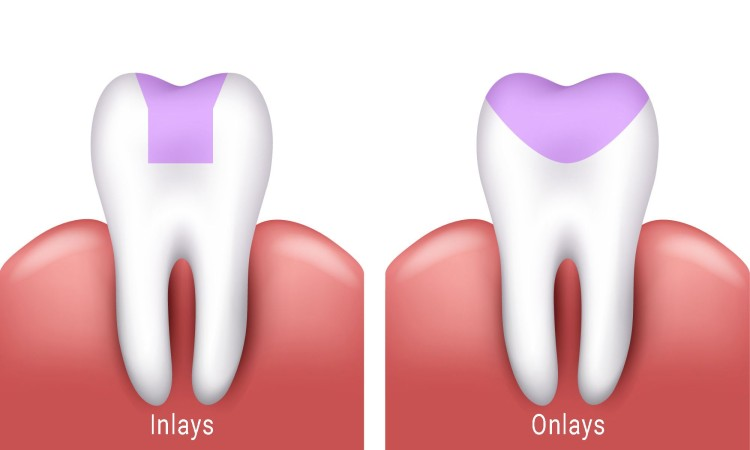 difference between dental inlay and onlay